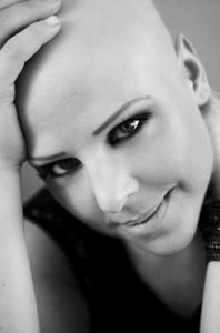 la-maison-del-cabello-efren-blanco-alopecia-areata-198x300 Alopecia Areata, las mejores soluciones