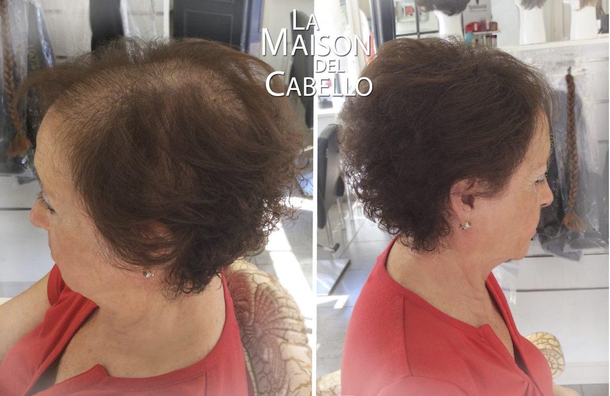 Corte de pelo para disimular la calvicie