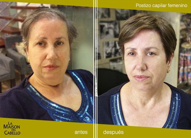 protesis-capilar38 Adiós alopecia: Postizos de cabello natural