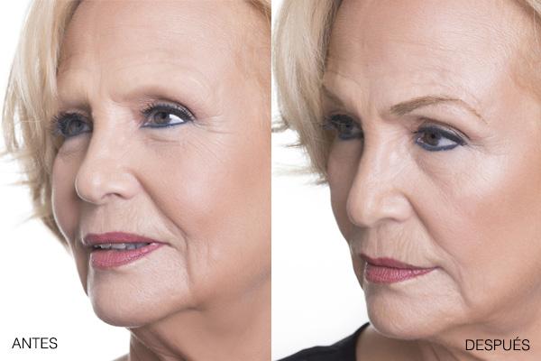 alopecia-cejas-la-maison-del-cabello-cejas-postizas-antes-despues Alopecia en Cejas y Pestañas