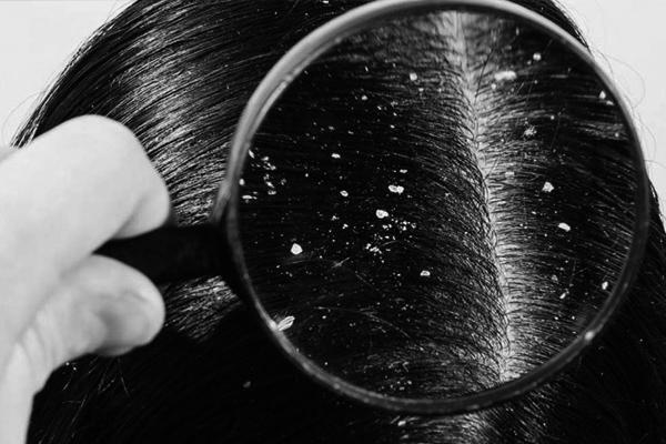 caspa-descamacion-la-maison-del-cabello Caspa y descamación, ¿qué es y cómo evitarla?