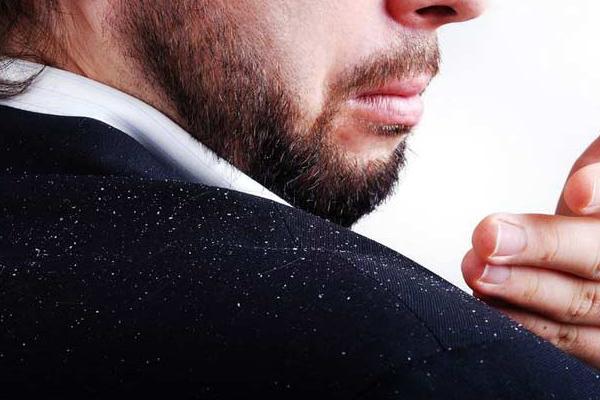 la-maison-del-cabello-caspa-descamacion Caspa y descamación, ¿qué es y cómo evitarla?