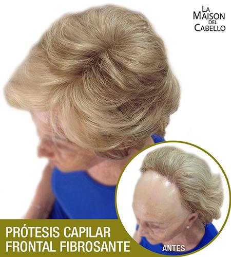 frontal-2-portada-BLOG Alopecia Frontal Fibrosante