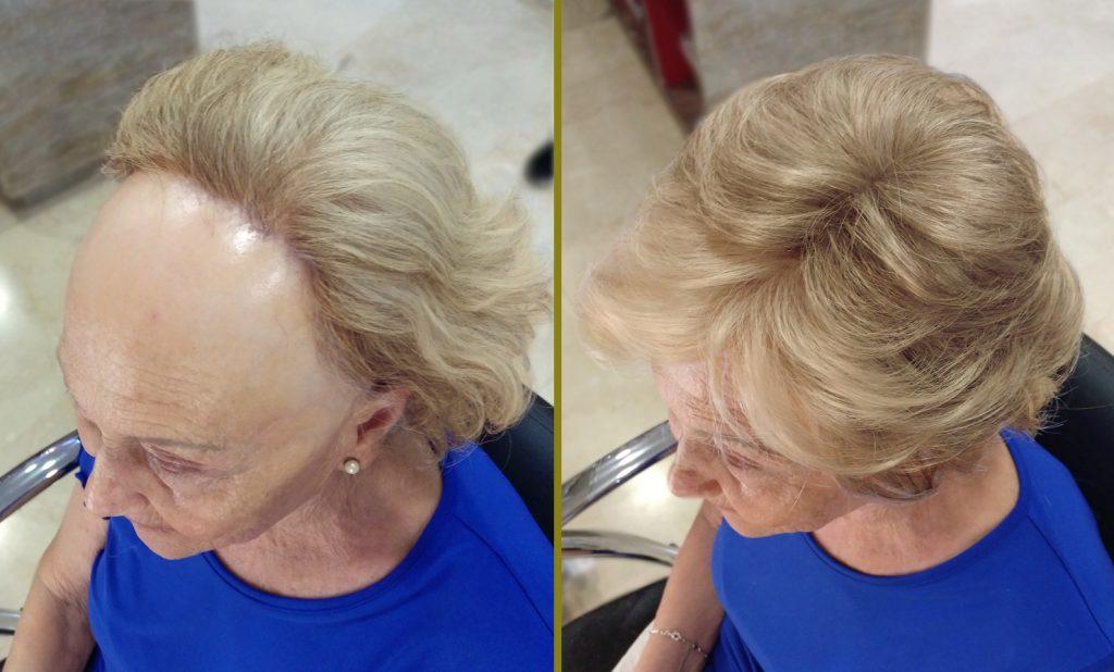 frontal-fibrosante-1-BLOG-1024x618 Alopecia Frontal Fibrosante