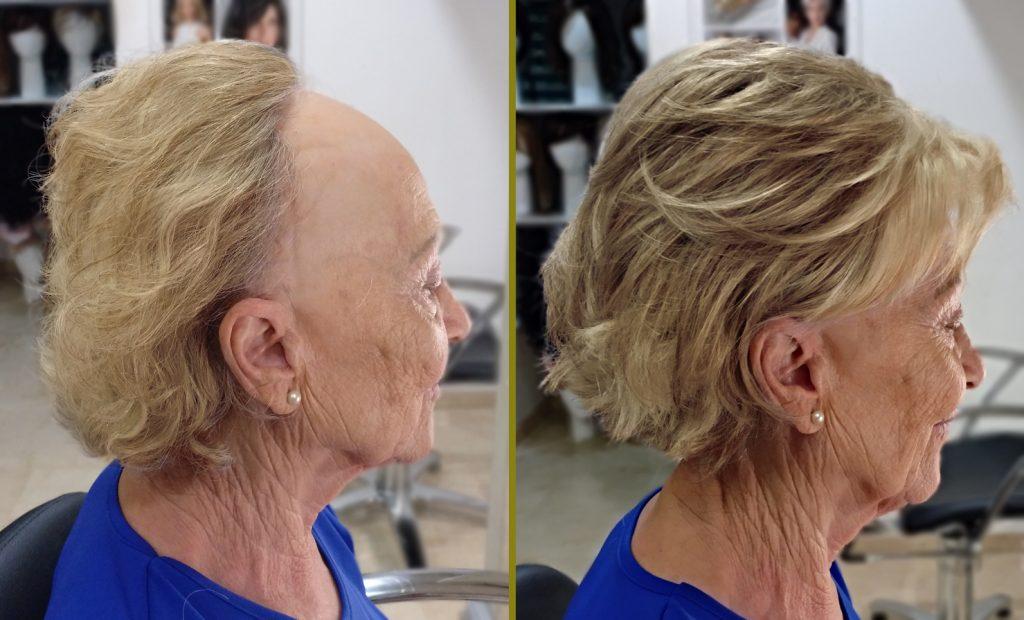 frontal-fibrosante-2-BLOG-1024x620 Alopecia Frontal Fibrosante